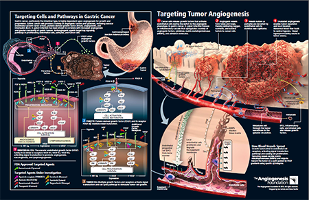 Antiangiogenic Therapy for Advanced Gastric Cancer – Update for Oncologists